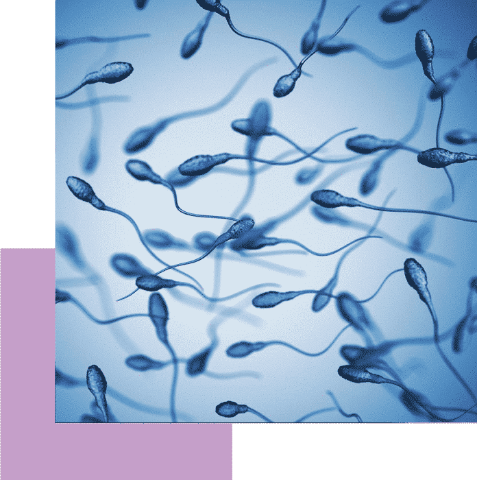 σπερματοζωάρια σπερμοδιάγραμμα iolife