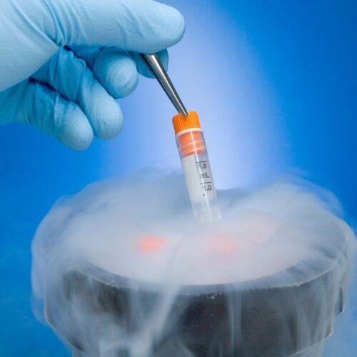 1-Testicular tissue